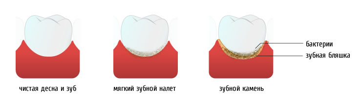 tooth_stone